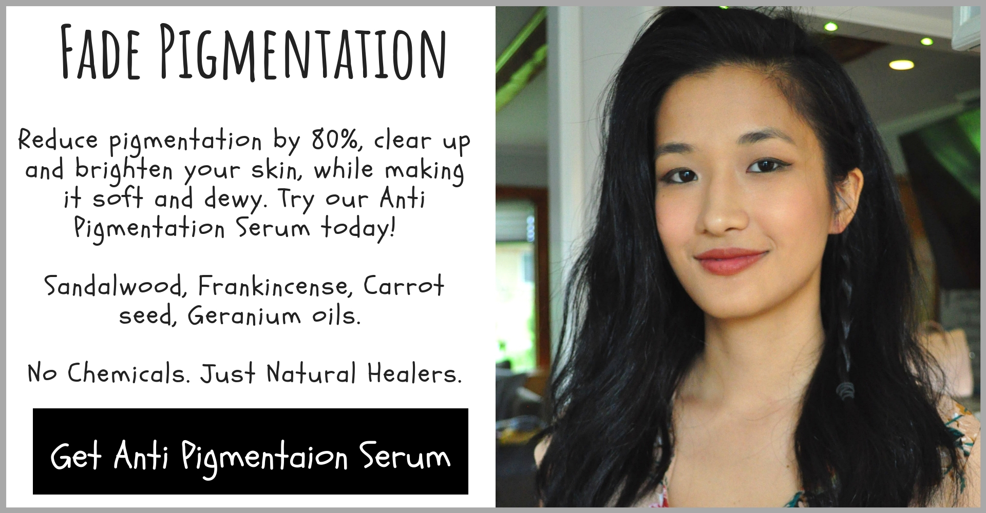 Anti Pigmentation Serum Image